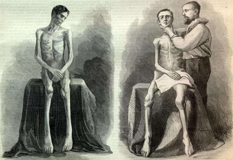 Starving Civil War Prisoners
